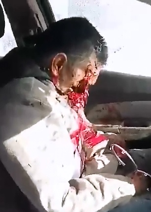 Short Video of Man Executed via Shotgun to the Face