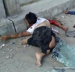 Man Twisted into a Pretzel Dead Next to His Friend