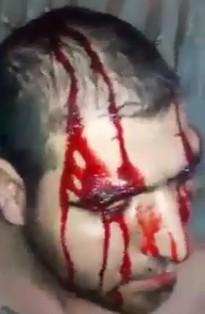 Fanatic Cuts his Head with Machete Blows