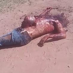 Beaten and Beheaded...Head Left on Torso