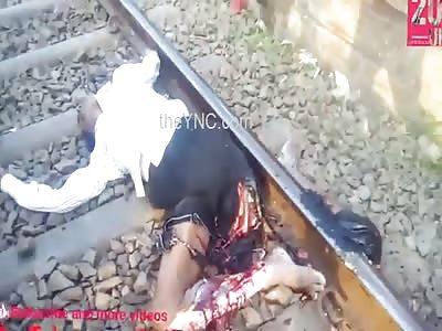 Man Loses Leg By Train