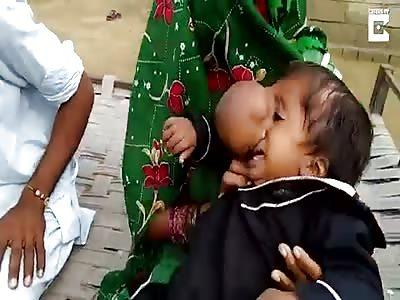 Toddler With Nose Bigger Than A Cricket Ball