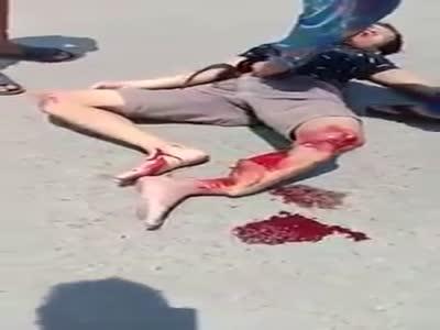 Leg fucked in Accident