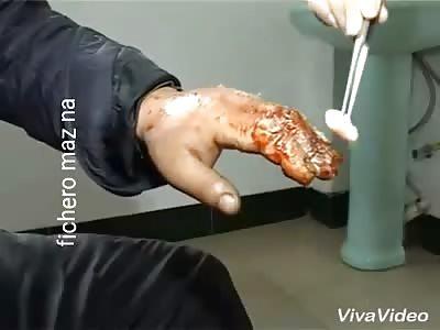 Man can no longer masturbate