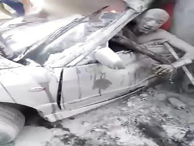 MAN BURNS WITHIN CART