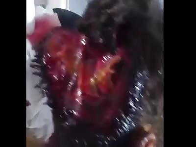 victim of airstrike attack