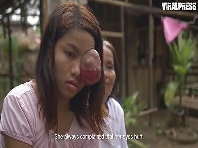 Teenage Girl Battling Eye Tumeur