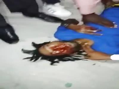 man agonizes after receiving four shots