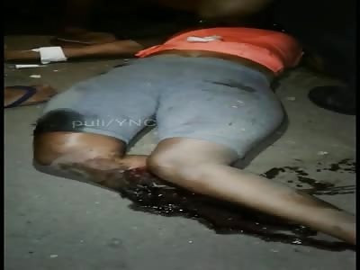 Accident victim loses his torn leg