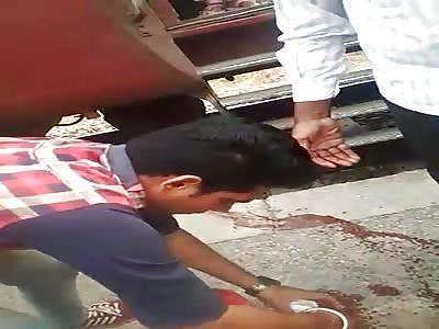 Leg Amputated by Failed Train Hopping