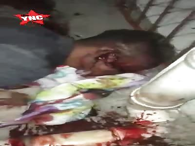Dude Shot in the Brain... Takes his Last Dramatic Last Breathe
