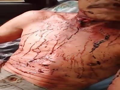 Wtf.Man suffer Machete attacked