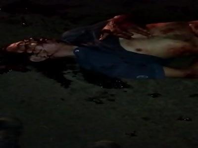 Skin Ripped Off Man's Body