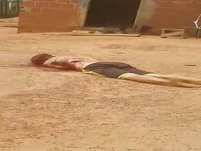 Man disassembled by machete, Brazil