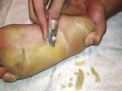 Cheese anyone?