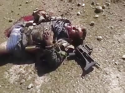 Daesh soldiers seriously injured