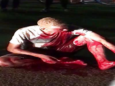Man blooding after several shots