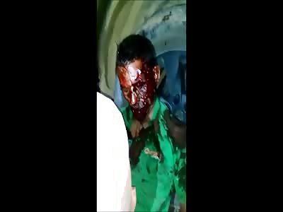 thief bus brutally beaten