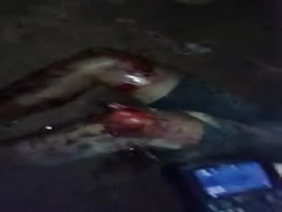 thief had his leg broken in an aggression