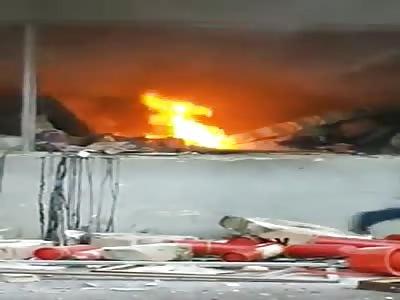 Burn in accident