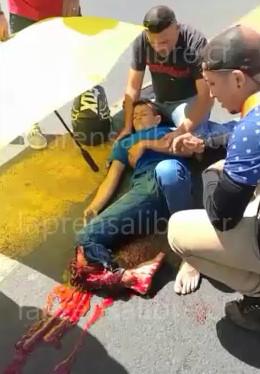 accident man loses his leg
