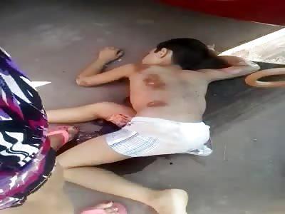 sad : accident with kid