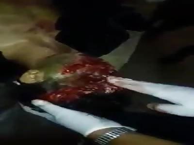 Face Destroyed After Being Shot
