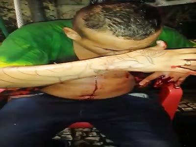 man injuried after get shot