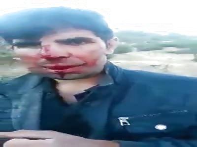 man brutally beaten