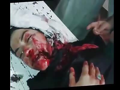 Bombing Victim