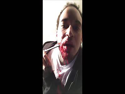 Kasper Knight Mutilates Same Cheek he shot with Sword