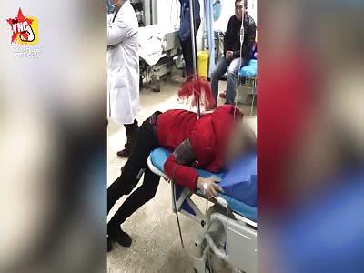 a man has 2 meter Hong Ying gun stuck in his back in Huangshan