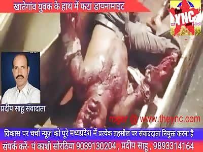 Devangan aged 35 dies due to dynamite fishing  near Nemavar