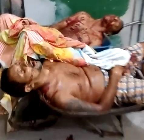Bloody Crimes Scenes Happened this Week in Brazil XX