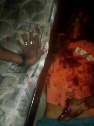GRUESOME Result of Machete Fight