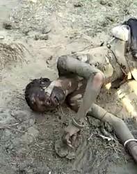 Man Burned Alive and Left for Dead