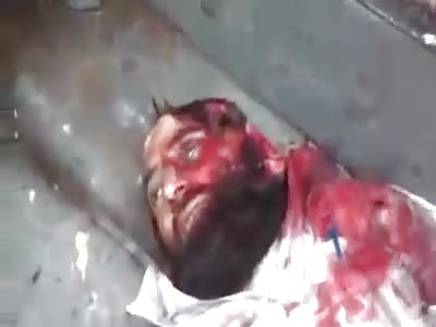 Died In Bombing