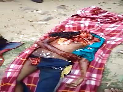 Aftermath of Indians Killed on Railway Bridge