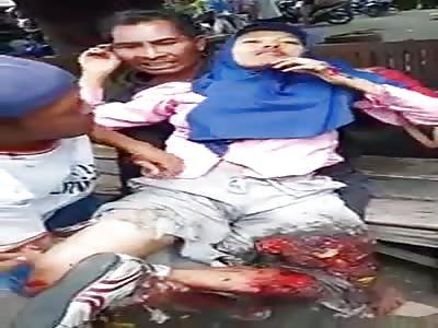 Woman Gets Her Leg Shredded in Harvester Accident