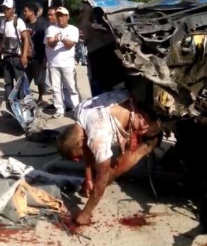 Sickening Car Crash Aftermath..( Philippines)