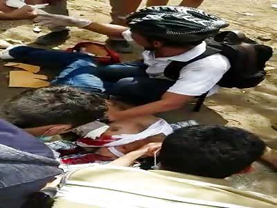 Protestor Shot in Nicaragua