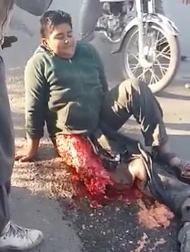 A Dangerous Accident Of a School Boy