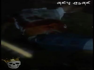 (Repost) Guy bleeding injured