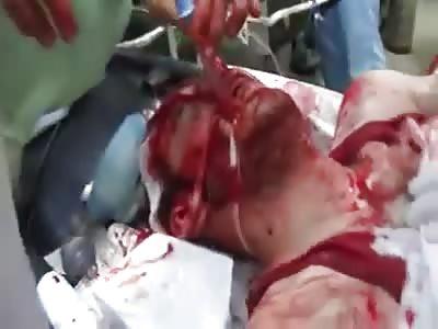 Saving Life Of Brutally Injured Man