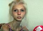 Anorexic Girl WTMFFFFFFFFF