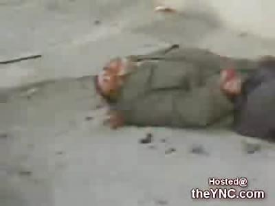 Dying Iraqi Man vomiting Blood