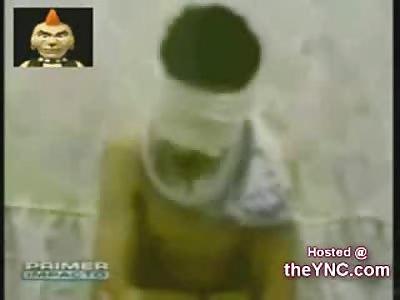 13 Year Old Boy beaten Horribly