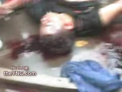 Man beaten to Death lies in Rigor on the Street
