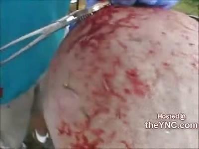 DAMN:  Insane Wrestler has Metal Spikes Stuck into his Head