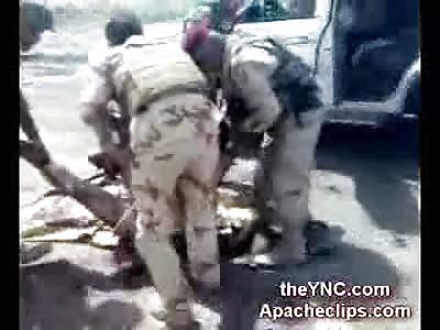 Iraqi National Guardman Leg Blown off by Landmine